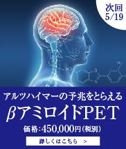 βアミロイドPET