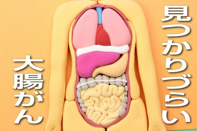 見つかりづらい大腸がん