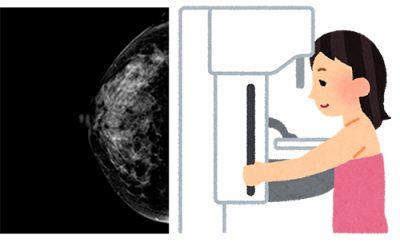 マンモグラフィ検査イメージ
