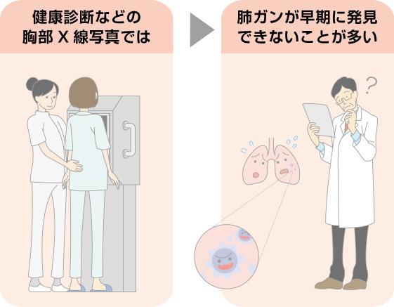 レントゲンでは肺がん早期発見が難しい