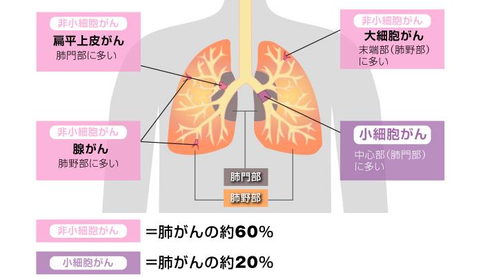 肺イラスト01