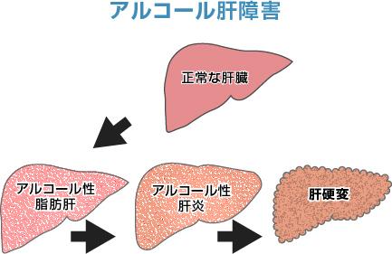 肝臓と肝硬変、がん